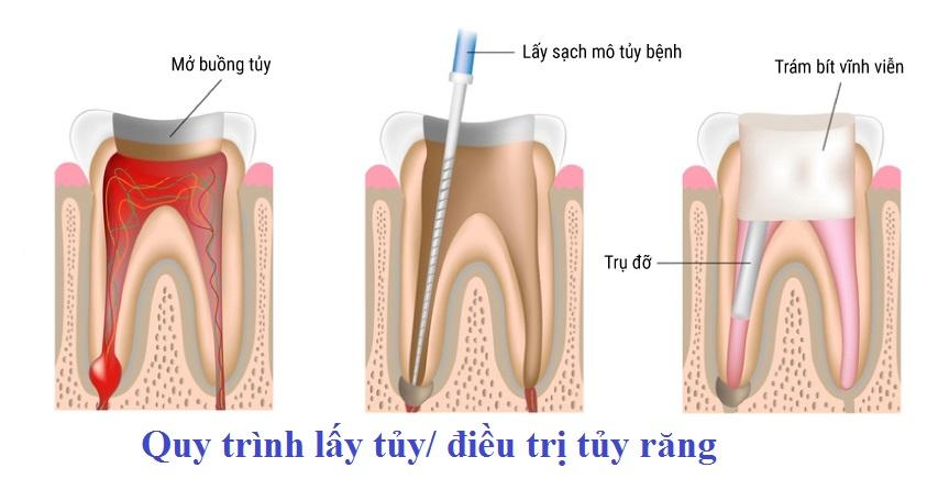 Quy trình lấy tủy răng tại nha khoa Sài Gòn